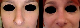 chirurgia estetica naso